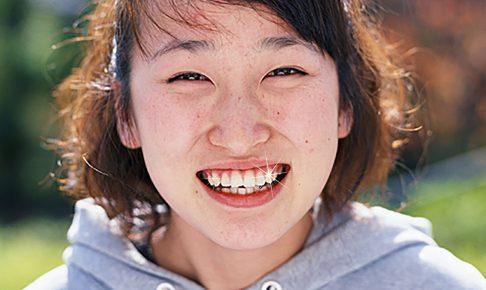 虫歯は虫歯菌が糖を利用して作っている