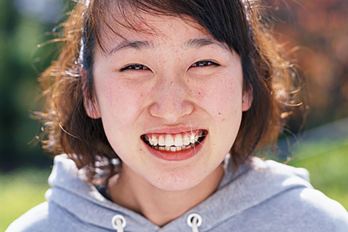 虫歯は虫歯菌が糖を利用して作っている【歯医者が患者を作ってます】