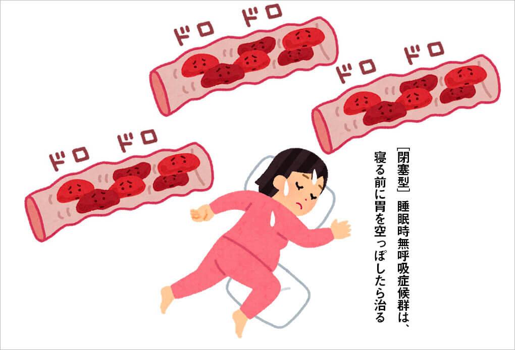 [閉塞型]睡眠時無呼吸症候群は、寝る前に胃を空っぽしたら治る