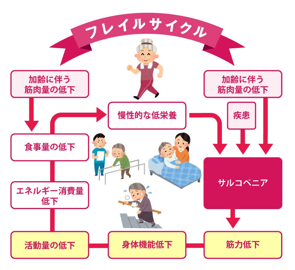 高齢者のウォーキングは、フレイルの治療と予防に最適