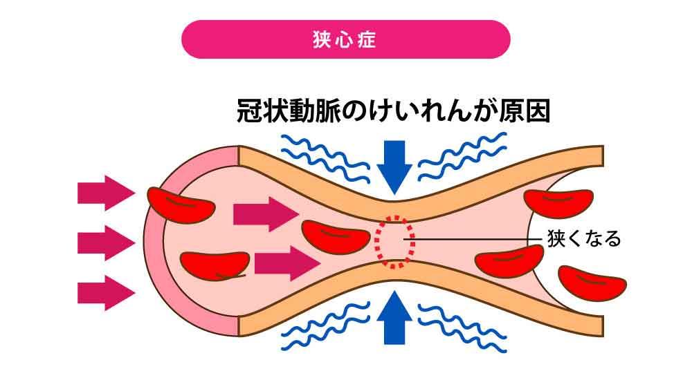 狭心症[冠状動脈のけいれんが原因]