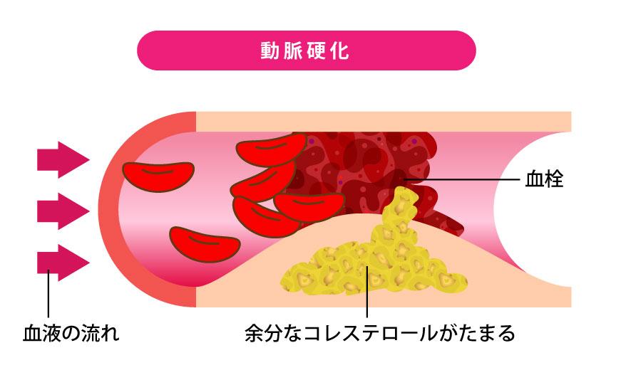 動脈硬化と血管の詰まり