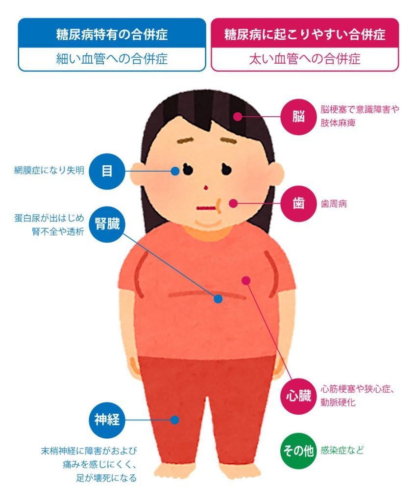 糖尿病の慢性合併症
