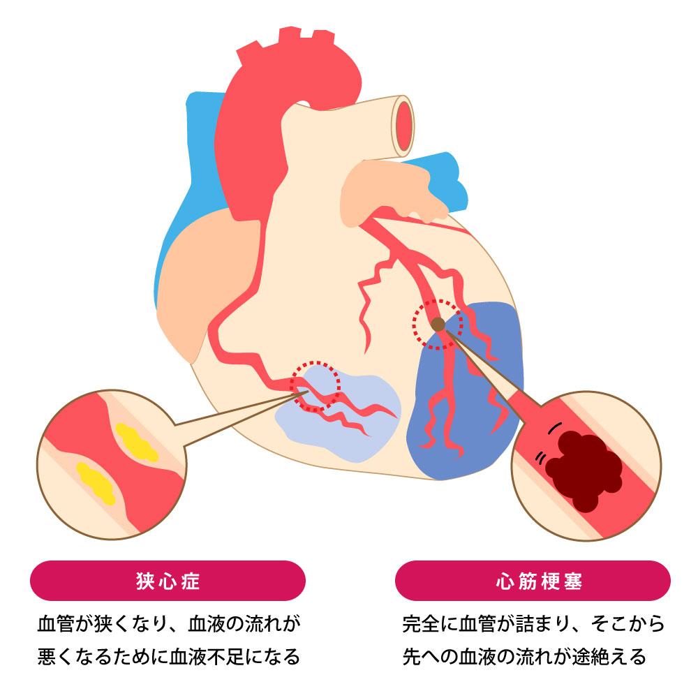 血栓が、心筋梗塞や脳梗塞といった病気のリスクを高めてしまいます。