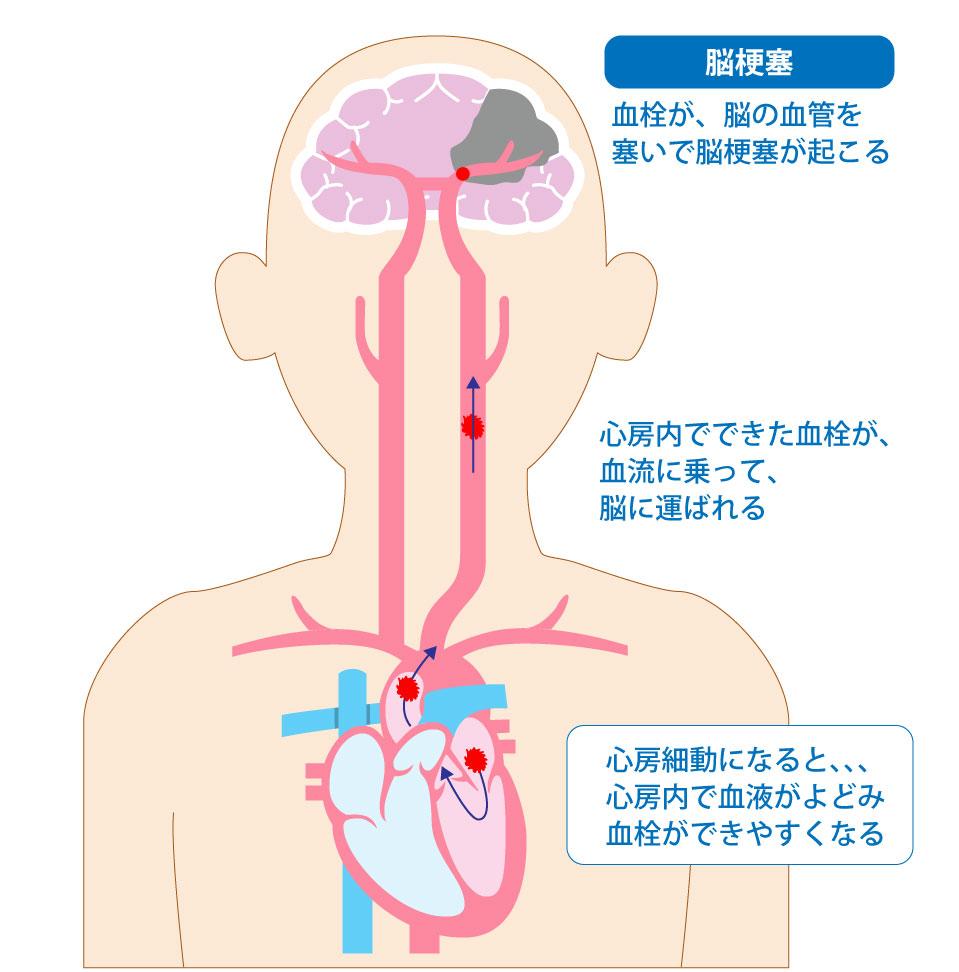 心房細動:脳梗塞