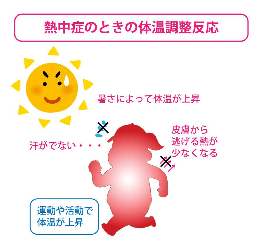 [環境][身体][行動]が、熱中症を発症させている要因