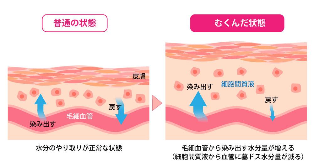 組織間液が異常に増加することで『むくみ』が発症します