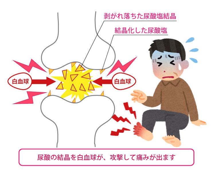 剥がれ落ちた尿酸塩結晶を白血球が炎症を起こす物質を出して攻撃します
