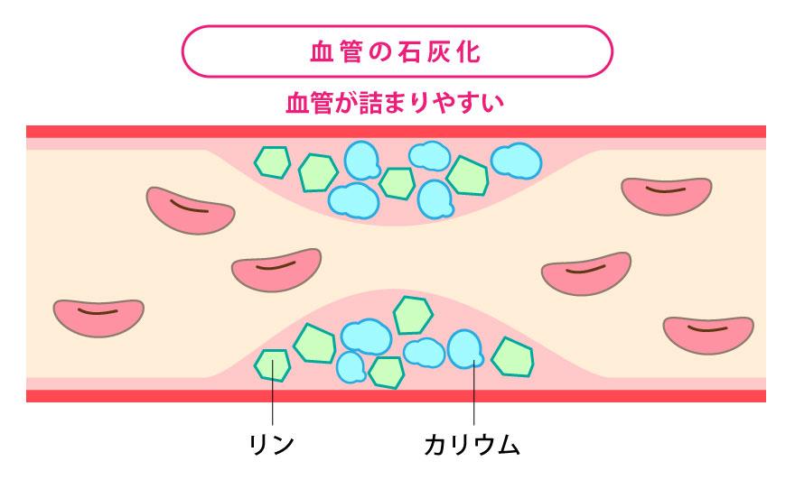 糖尿病性腎症が進行すると、糸球体の中の血管が狭くなり、糸球体の濾過機能が低下します
